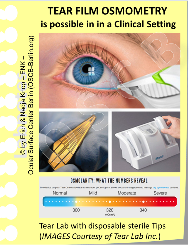 Tear Film  OSMOLARITY  is an important parameter and an important secundary pathogenetic factor in Dry Eye Disease. The respective measurement can nowadays be done very easily with a hand-held instrument (TearLab) that uses sterile disposable Tips for uptake of tears and can measure the osmolarity very precisely. By this device it is possible to determine a detrimental tear osmolarity simply and directly in the practice besides the patient in a few seconds and to have the degree of hyperosmolarity measured very exactly.