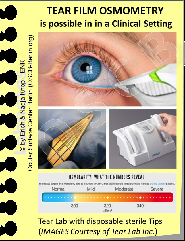 Die  Tränenfilm-OSMOLARITÄT  ist ein wichtiger Parameter undein wichtiger sekundärer pathogenetischer Faktor des Trockenen Auges. Die entsprechende Messung kann heutzutage sehr einfach mit einem computerisierten Handgerät (TearLab) ermittelt werden, das sterile Einmal Messsonden verwendet und die Osmolarität sehr genau ermittelt. So kann einfach und schnell direkt in der Praxis am Patienten in wenigen Sekunden eine schädliche Hyper-Osmolarität der Tränenflüssigkeit ermittelt und genau gemessen werden.