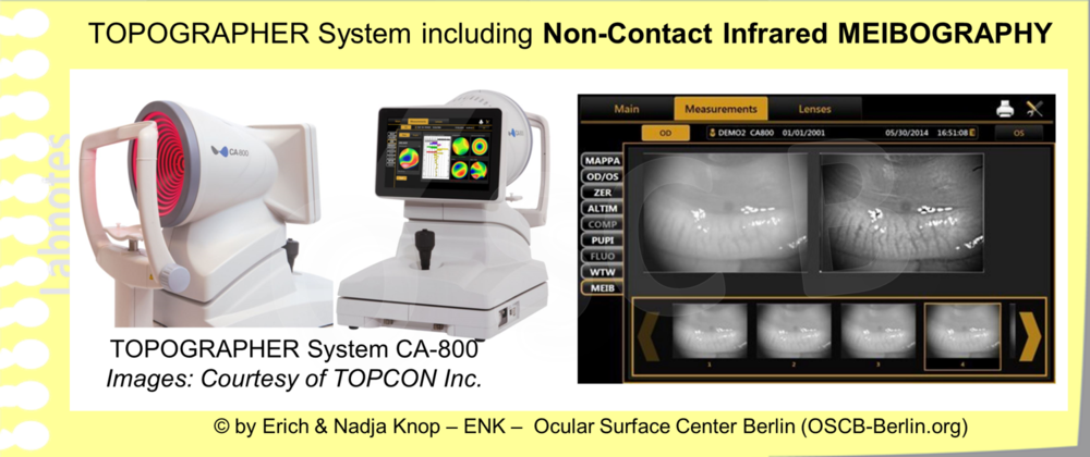 Topographer Systems are typically more advanced. They usually provide more advanced illumination annd visualization techniques and a better image quality together with measurements and a structured documentation that can make the clinical daily life more effective and enjoyable.