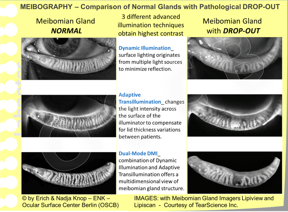 Advance illumination techniques allow imaging of the Meibomian glands in unprecedented clarity. Thereby the exact structure of normal Meibomian Glands and precise information on the their alteration in gland drop-out can be obtained.  Images: Courtesy of TearScience Inc.