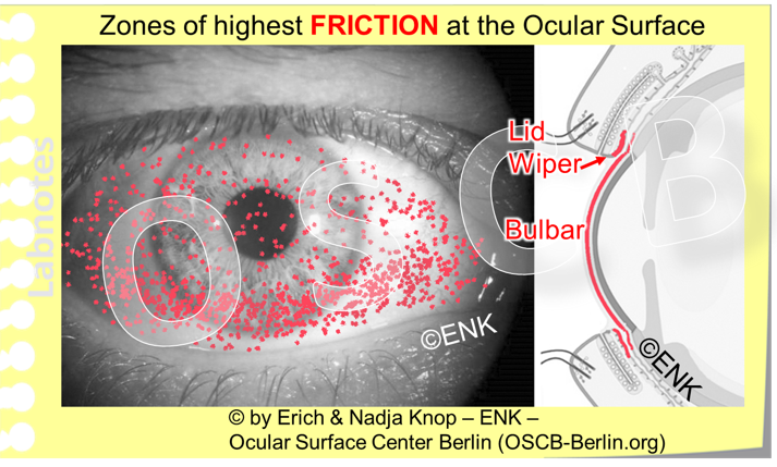 Friction occurs mainly at the bulbar surface inside the palpebral fissure and at the palpebral posterior lid border, mainly in the upper eye lid but also to a certain extent in the lower lid. Under normal conditions there is enough lubrication available by a sufficient amount of tear fluid and additional lubricative proteins such as    lubricin   . In conditions of increased friction, such as in Dry Eye Disease and Contact lens wear the normal movements of eye ball and lids against each other already cause epithelial damage. This can be made visible by ´Vital Staining´using different stains because the wounded cells pick up the stain and the normal ones don´t. The staining at the eye ball is termed as corneal or conjunctival staining or superficial punctate keratitis or just as ´Vital staining´. The vital staining of the elevated epithelial lip of the lid wiper zone at the posterior lid border is termed  Lid Wiper Epitheliopathy  (LWE) by  KORB and colleagues .