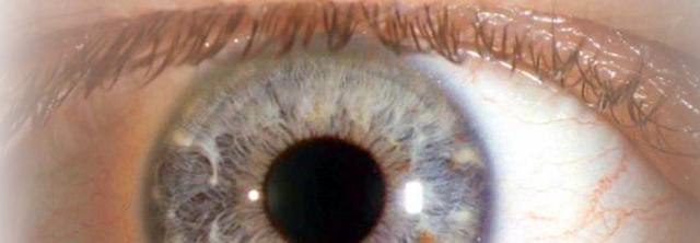 Augen-oberfläche