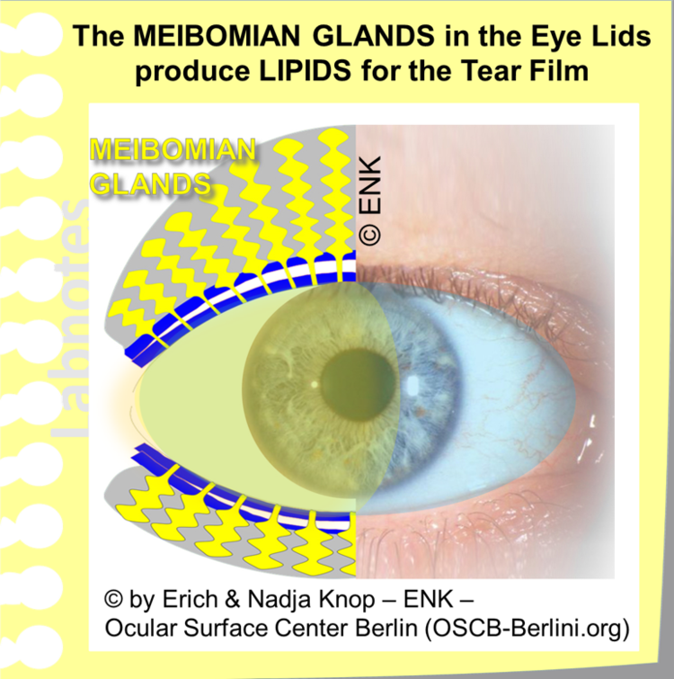 Glimpse Of The Meibomian Gland Ocular Surface Center Berlin