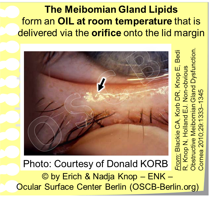Healthy Meibomian Glands deliver a clear liquid oil (arrow) through their orifice onto the lid margin. This can be tested by a technique termed ´Diagnostic Expression´ with very mild pressure from the outside - every orifice should then deliver a little puddle of oil (arrow).