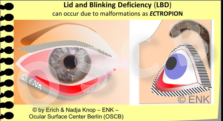 Glimpse On The Lid Margin Ocular Surface Center Berlin