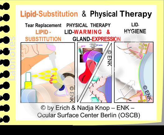OSCB-Bild_6.0_Dry Eye Disease_MGD, THERAPY for Dry Eye incl. MGD.png