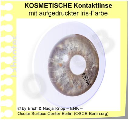 OSCB-Berlin.org_(c)ENK_Trockenes-Auge,-Dry-Eye-Disease,-Contact-Lens,-Kontaktlinse_KOSMETISCHE-Kontaktlinse-mit-aufgedruckter-Iris-Farbe_2.png