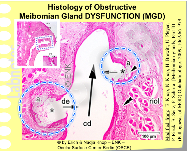 The  obstruction in MGD  results, due to continuing secretion, in an  increased pressure inside the gland . This leads to  dilatation of the ductal system  with the long central duct (cd) and the connecting ductules (de) to the acini. The epithelium appears distinctly thinned in places compared to the normal about four cell layers Increased pressure also affects the secretory cells (a). The susceptible  secretory cells disappear  (asterisk) and the acini transform from solidly filled cell clusters into hollow sacs (encircled) with a loss of secretory capacity. Eventually, destroyed acini with residual secretory cells can be integrated into the wall of the central duct as seen here indicated by double arrowheads on the left side of the duct.