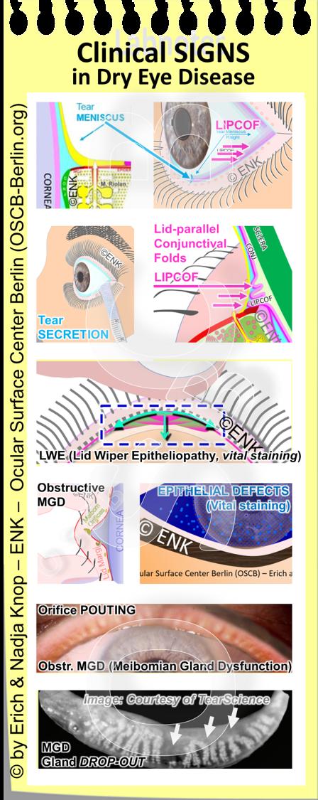 OSCB-Berlin.org_Clinical SIGNS in Dry Eye Disease.png
