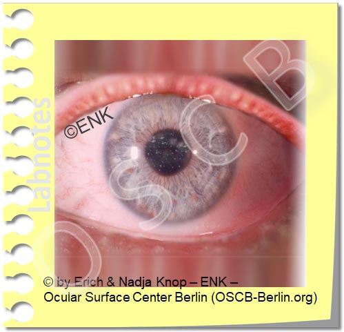 Copy of DRY EYE DISEASE