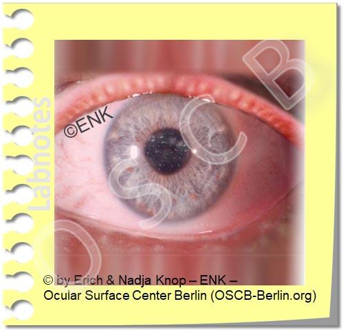 Copy of Copy of DRY EYE DISEASE