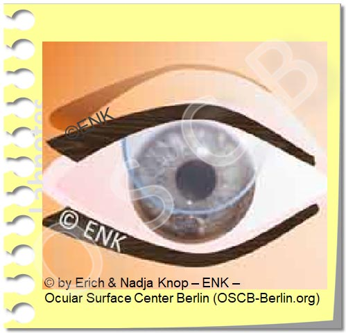 Copy of Copy of Contact Lenses