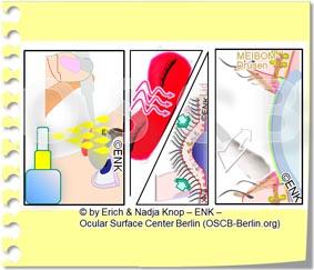 Copy of TREATMENT of Dry Eye Disease