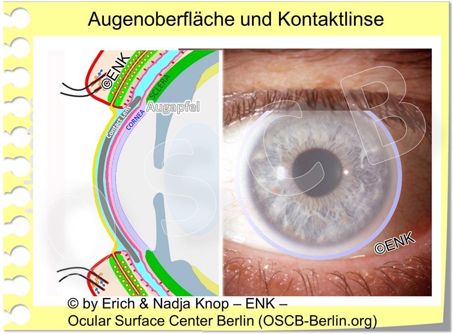 Schematische Zeichnung einer typischen mittelgrossen weichen Kontaktlinse auf dem Auge und teils hinter den Augenlidern. Diese Linsen werden auch korneo-sklerale Kontaktlinsen genannt, da sie über die Kornea hinaus auf die Sklera reichen. Dies ist der am weitesten verbreitete Typ von Kontaktlinsen.