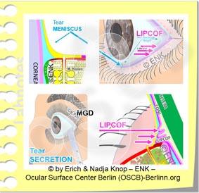 SIGNES CLINIQUES de la<br>sécheresse oculaire