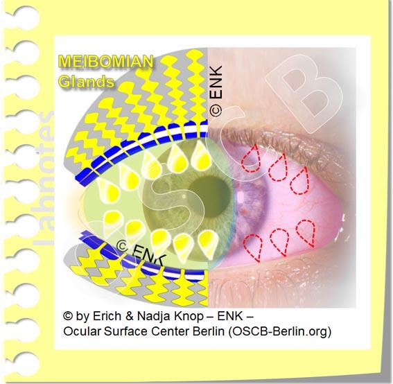 OSCB-Berlin.org_(c)ENK_Trockenes-Auge,-Dry-Eye-Disease,-Contact-Lens,-Kontaktlinse__A DEFICIENCY of OIL the most frequent cause for DRY EYE DISEASE_OHNE Text_20_.jpg