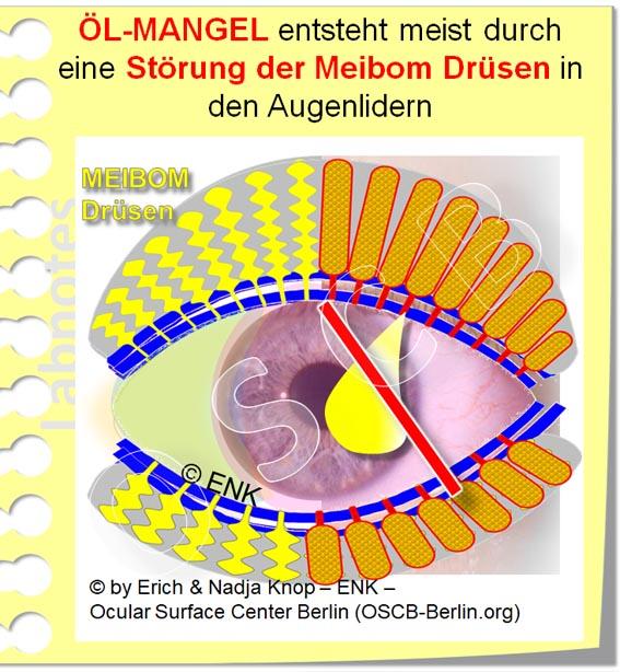 OSCB-Berlin.org_(c)ENK_Trockenes-Auge,-Dry-Eye-Disease,-Contact-Lens,-Kontaktlinse__ÖL-MANGEL entsteht meist durch eine Störung der Meibom Drüsen in den Augenlidern_20_.jpg