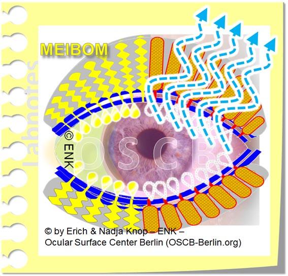 OSCB-Berlin.org_(c)ENK_Trockenes-Auge,-Dry-Eye-Disease,-Contact-Lens,-Kontaktlinse___MeibomDrüsen Dysfunction_OHNE TEXT_20_.jpg