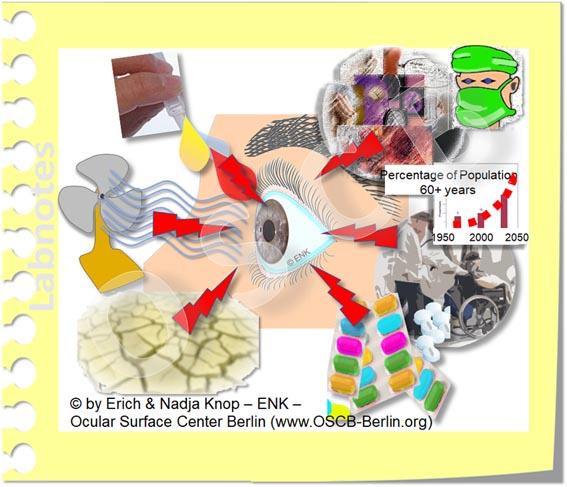 OSCB-Berlin.org_(c)ENK_Trockenes-Auge,-Dry-Eye-Disease,-Contact-Lens,-Kontaktlinse____RISIKO FAKTOREN, internal and external RISK FACTORS_20_.jpg