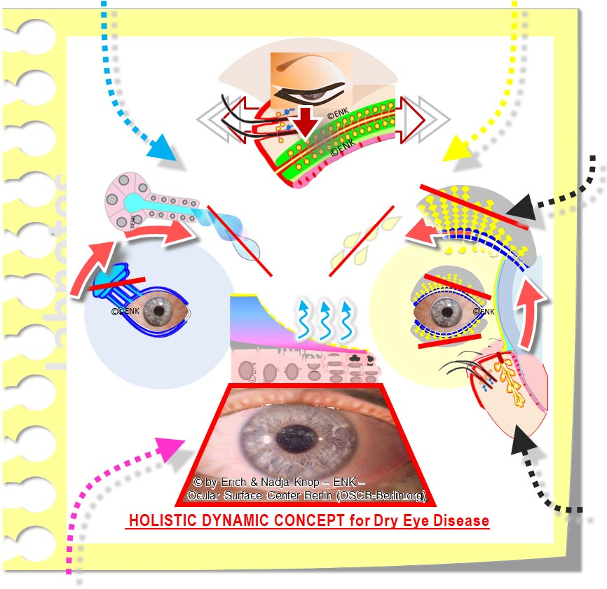 Holistic Dynamic Concept for DRY EYE Disease_Schema Abb. Quadr._THERAPIE_ .jpg