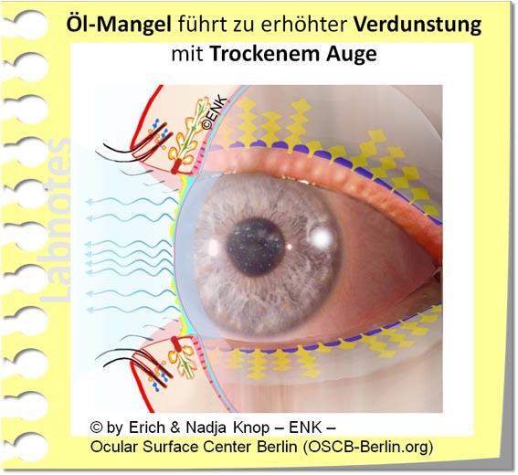 OSCB-Berlin.org_(c)ENK_Trockenes-Auge,-Dry-Eye-Disease,-Contact-Lens,-Kontaktlinse____Öl-Mangel führt zu erhöhter Verdunstung mit Trockenem Auge_20_.jpg