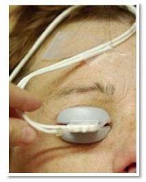 TearScience LIPIFLOW Patient + Applicator.jpg