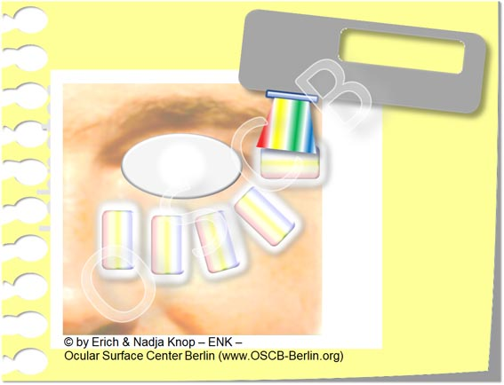 OSCB-Berlin.org__Trockenes Auge, Dry Eye Disease, Meibomian Gland Dysfunction, MGD, MDD_Intense Pulsed Light (IPL) Schematic Procedure_20_.jpg