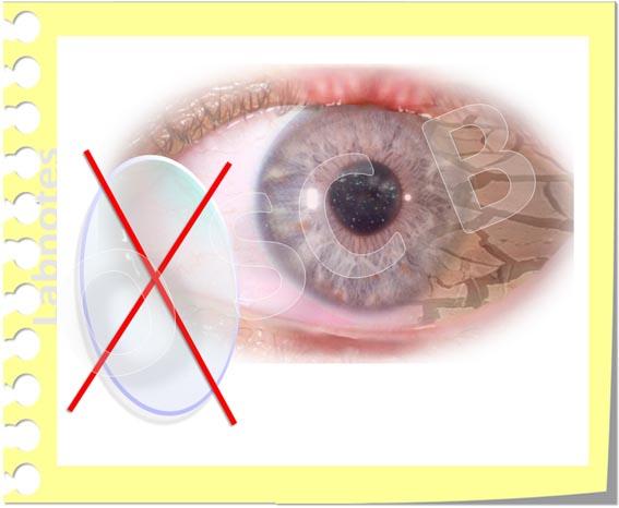 OSCB-Berlin.org_No Contact Lens Wear in Dry Eye Disease_Kein Kontaktlinsentragen beim Trockenen Auge_(c)ENK_20_.jpg