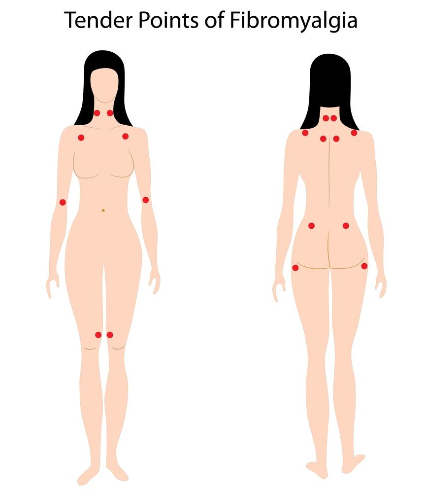 tender-points-fibromyalgia