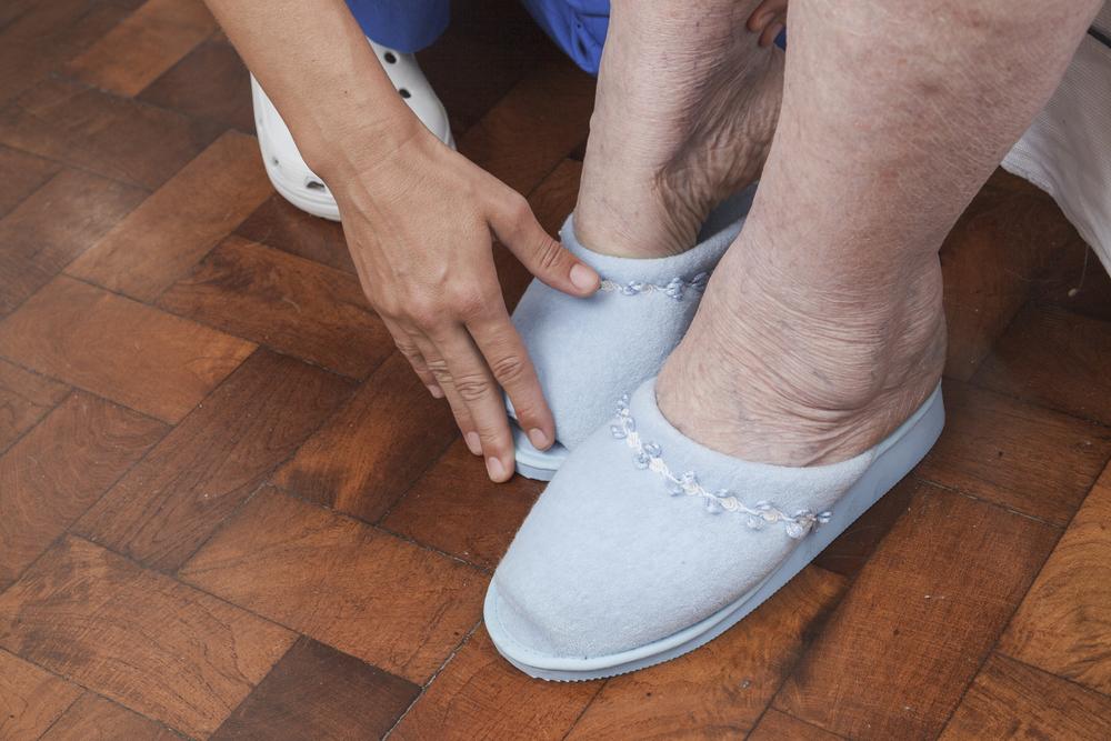 elderly-swollen-feet-ankles-picture