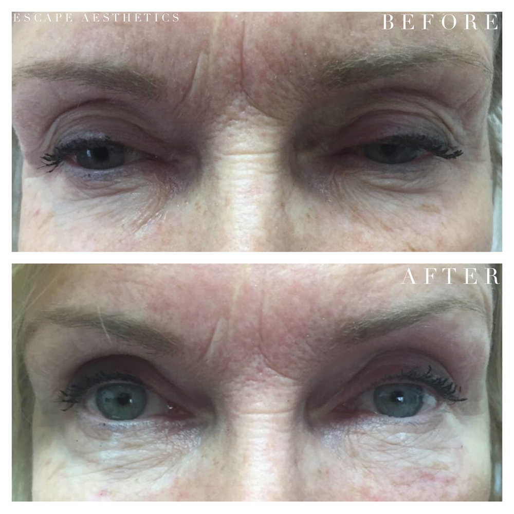 Tear Trough Filler Before and After, Escape Aesthetics