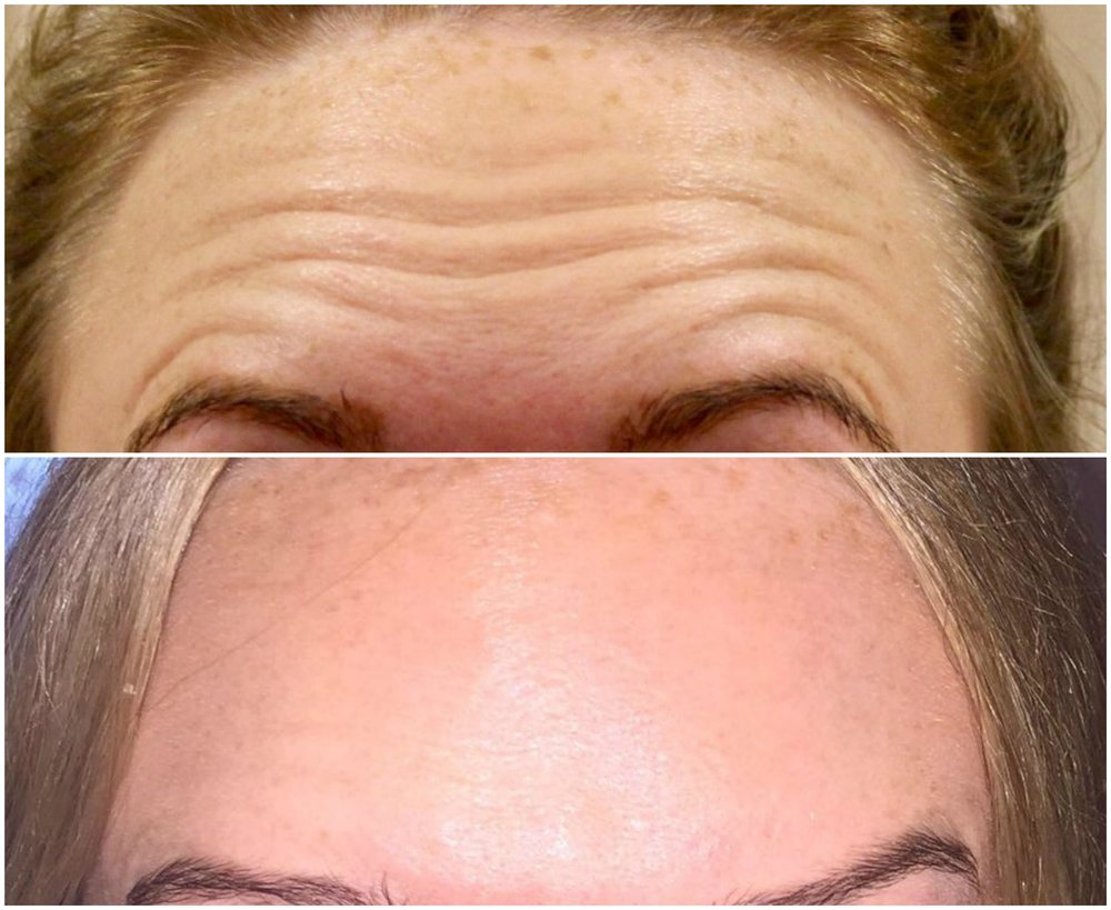 Forehead Frown Line - BOTOX®: Before and After, Escape Aesthetics