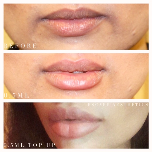 Before & After Lip Fillers Using 0.5ml