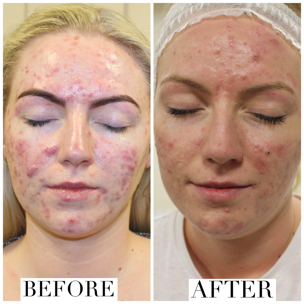 Before & after chemical skin peels using glycolic acid