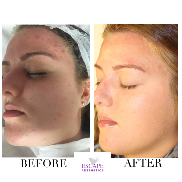 Before and after only 2 sessions of medical microdermabrasion