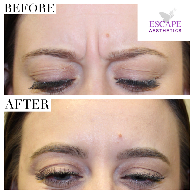 Frown line BOTOX® - Before and After, Escape Aesthetics