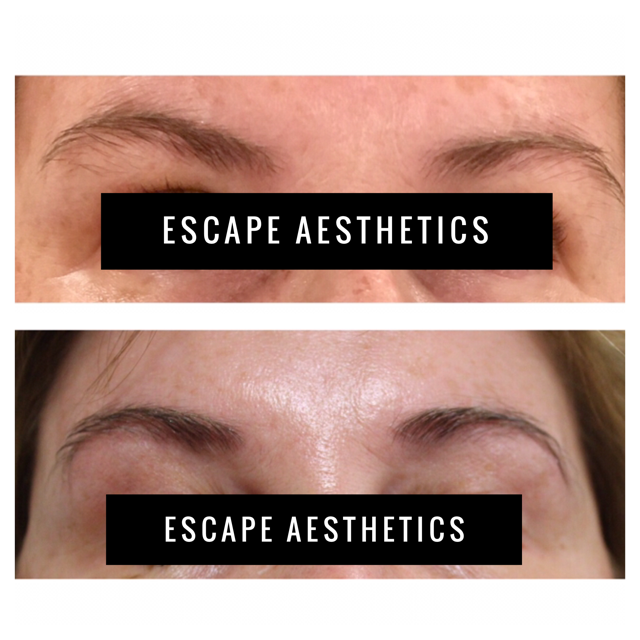 BOTOX® used for natural brow lift