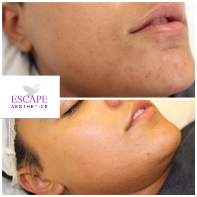 Before & After 2 sessions of Chemical Skin Peel
