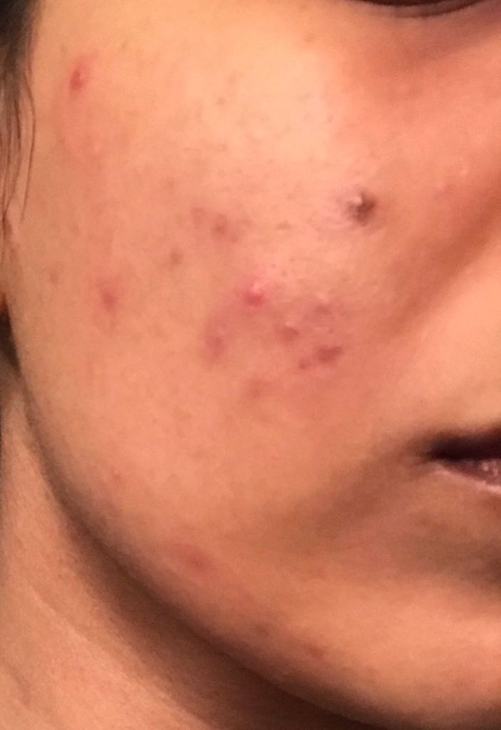 Before AlumierMD (Right Cheek)