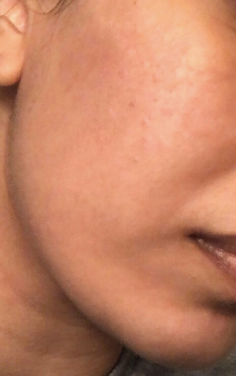 After AlumierMD (Right Cheek)