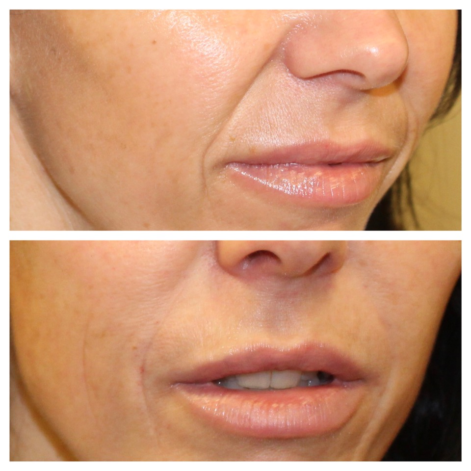 Before & After Smile Line Fillers