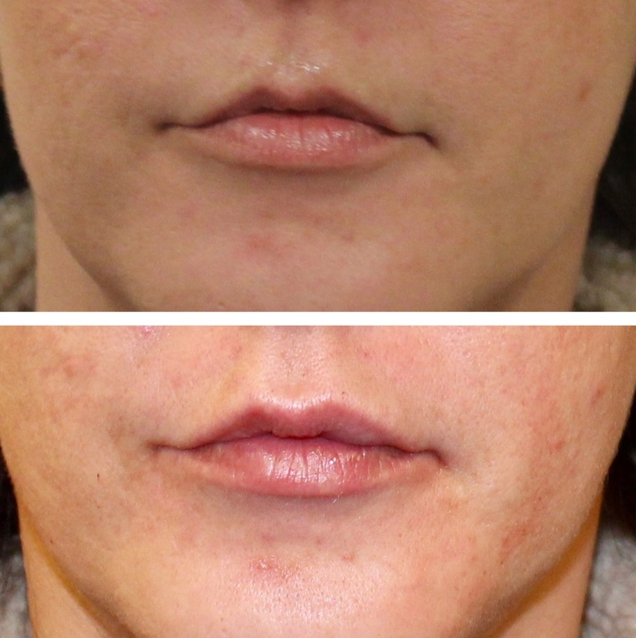 Claire Lip Filler Before & After