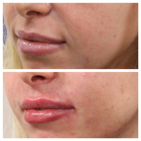 Before & After Lip Filler & Smile Lines, Dermal Filler
