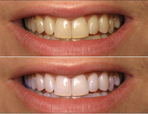 Before-and-after-home-teeth-whitening-with-coconut-oil-e1445171893878 (1).jpg