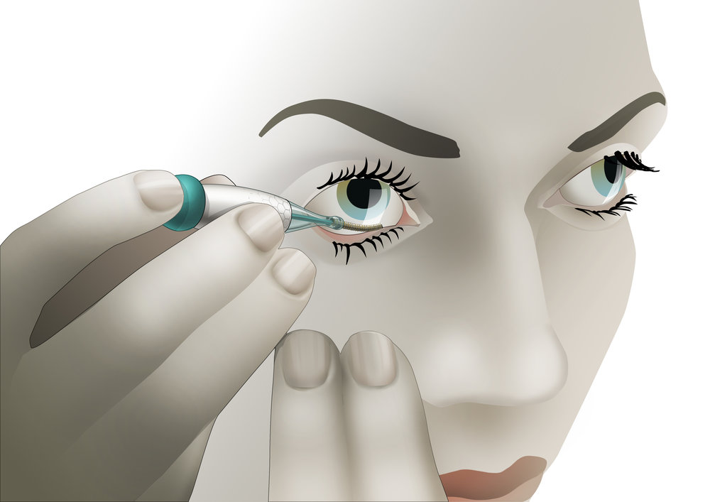 The flexible sensor is placed behind the eyelid. It is more comfortable than a contact lens