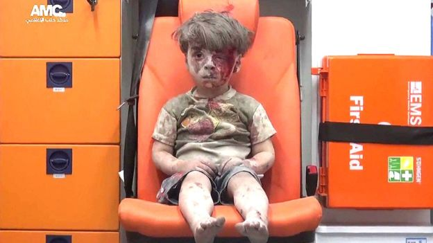 Omran Daqneesh | Credit: Courtesy of Aleppo Media Center