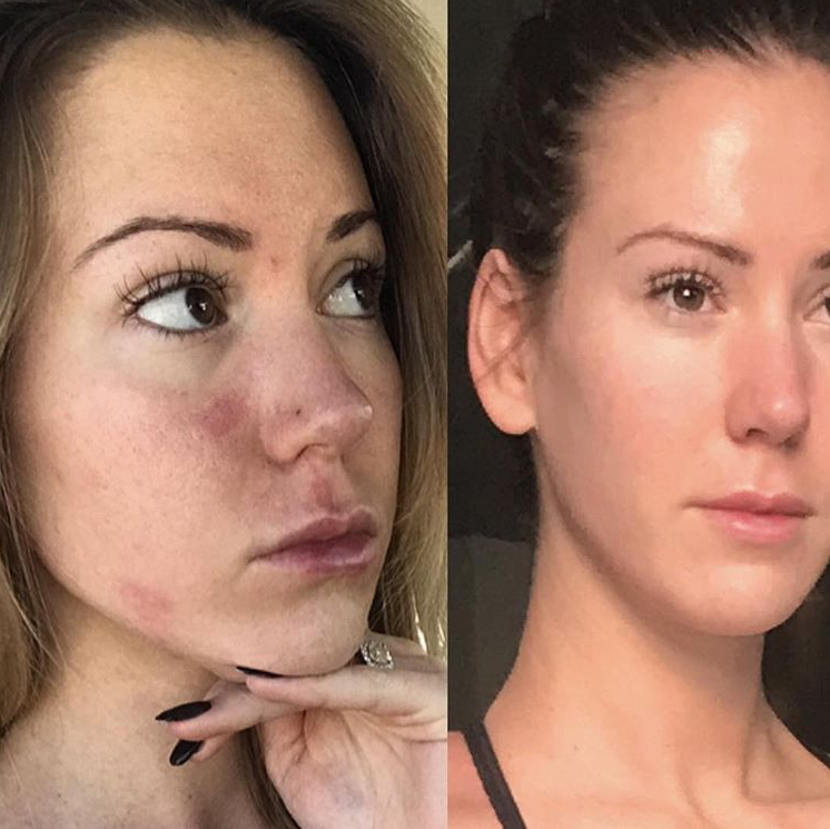 """On the left is how I woke up literally every morning with hives and bags under my eyes, right is how I woke up last week"" -Aleysha"