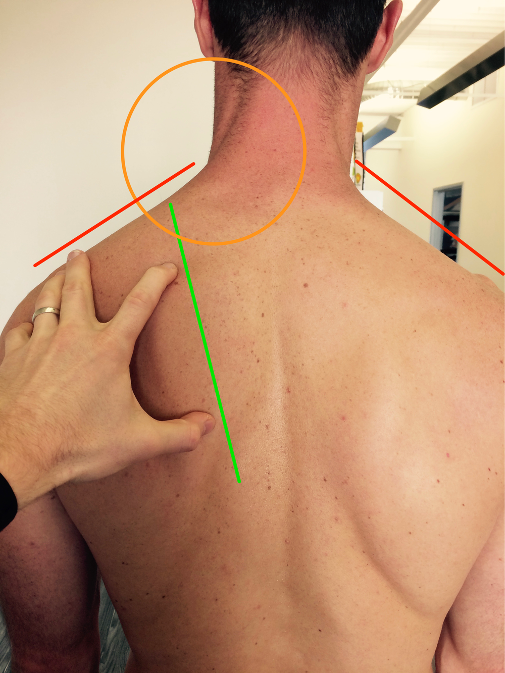 Scapular downward rotation indicated by the inferior border resting closer to the vertebrae than the spine of the scapula.