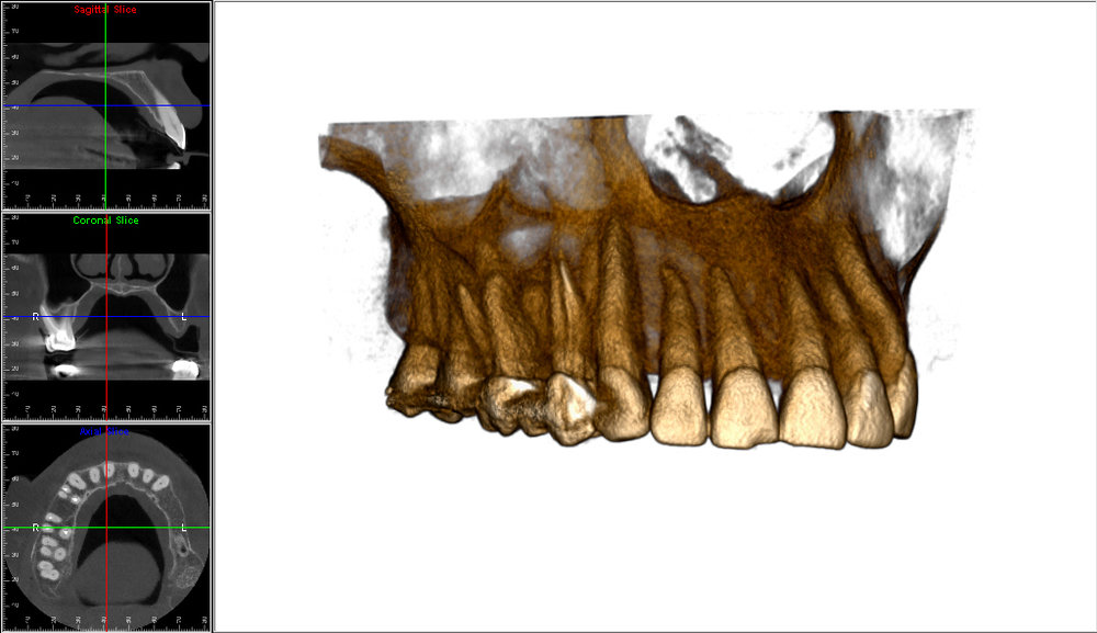 Transparent 3D view of the maxilla.