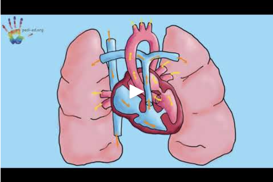 VSD - A VSD, or Ventricular Septal Defect, can sound really confusing but it's actually pretty simple. Afi and Zozo will tell you all about it in this short video!